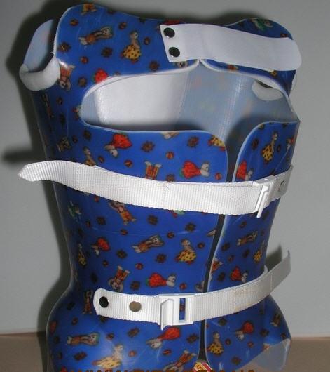корсет при компрессионном переломе грудного отдела позвоночника