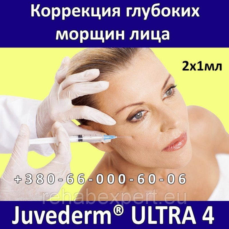 Allergan Juvederm ULTRA 4 - 2 x 1мл Коррекция глубоких морщин лица