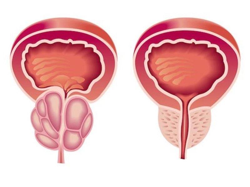 prostatitis de fermentos lácticos