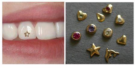 Buy Skaysa on teeth. Decoration of teeth. Decoration of teeth of a skaysama in Kiev. Skaysa - the price