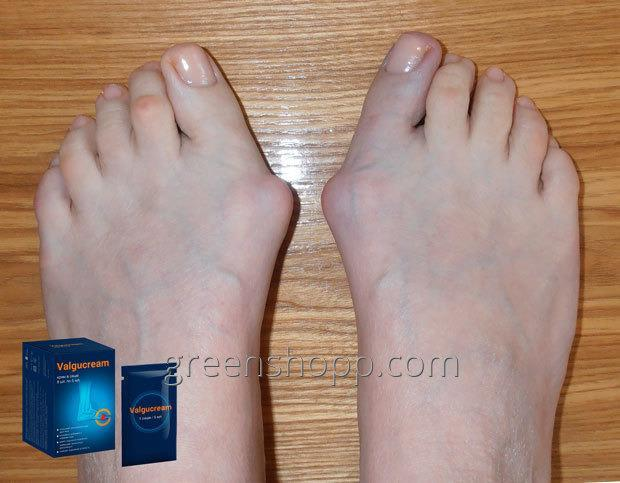nano gél ízületi fájdalmak kezelésére)