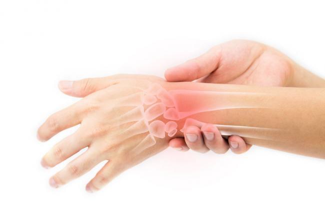 Artropant - Este în valoare de cumpărare? Cat costa? Artropant preț de cumpărare