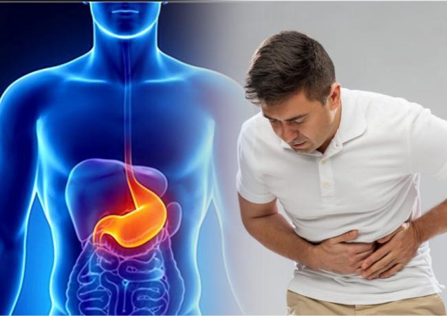 Bowtrol probiotikumok