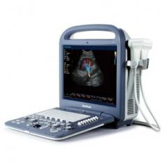 Portable ultrasonic SonoScape S2 scanner