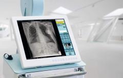 Комплекси рентгенодіагностики пересувні (мобільні)