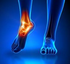 Salvisar - painkiller for joints