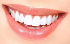 BioSmile Plus (BioSmile Plas) - tooth whitening