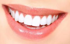 Паста для отбеливания зубов BioSmile Plus (БиоСмайл Плас)