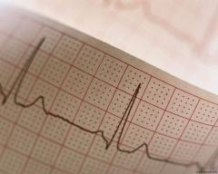 Бумага для электрокардиограммы