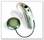 Cochlear implants of Advanced Bionics