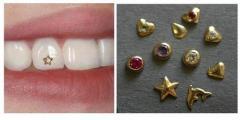 Skaysa on teeth. Decoration of teeth. Decoration