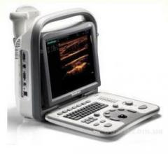 Device ultrasonography SonoScape A6