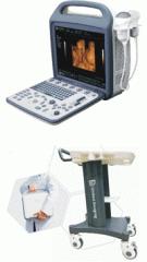 Ultrasonography iuStar160 Ukraine device