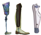 Leg prosthesis (amputation is higher than a knee)