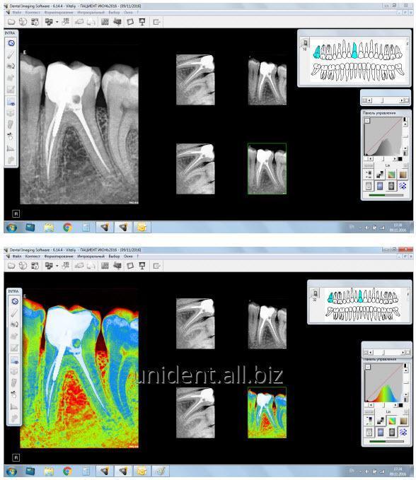 rentgenoborudovanie_cs_kodak_trophy_rentgenapparaty_cs_2100_i_cs_2200_viziografy_rvg_6100_i_rvg_5100_czifrovye_radiograficheskie_sistemy