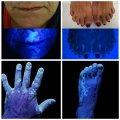 Прибор BLB-365 9W, ручной для обследования кожи