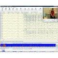 Программа и оборудование для проведения полисомнографических исследований Нейрон-Спектр-ПСГ