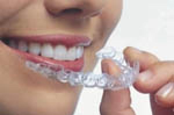 Заказать Естетическая стоматология, Реминерализация