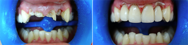 Заказать Ортопедическая стоматология