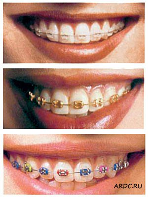 Заказать Ортодонтия (исправление положения зубов и прикуса)
