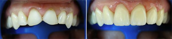 Заказать Эстетическая реставрация зубов