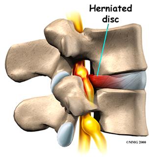 Polisegmentarnyy la osteocondrosis del dolor