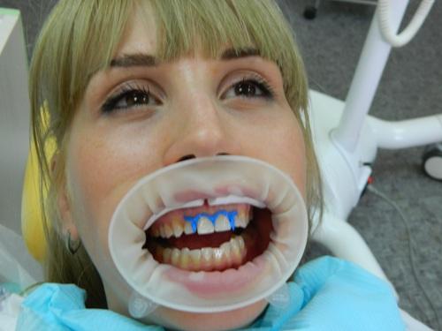 фото отбеливание зубов отзывы