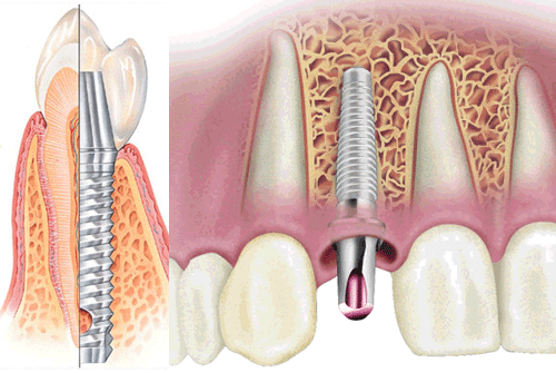 имплантация зубов, детальная имплантация