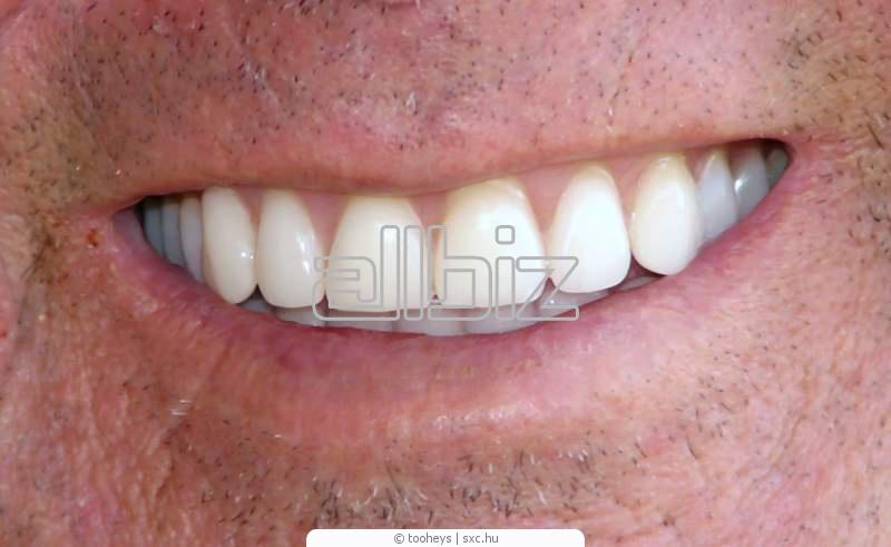 Заказать Протезирование зубов