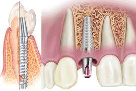 Заказать Имплантация зубов