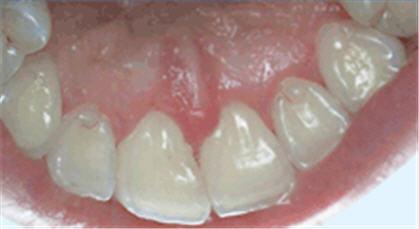 Темнеют ли зубы от хлоргексидина