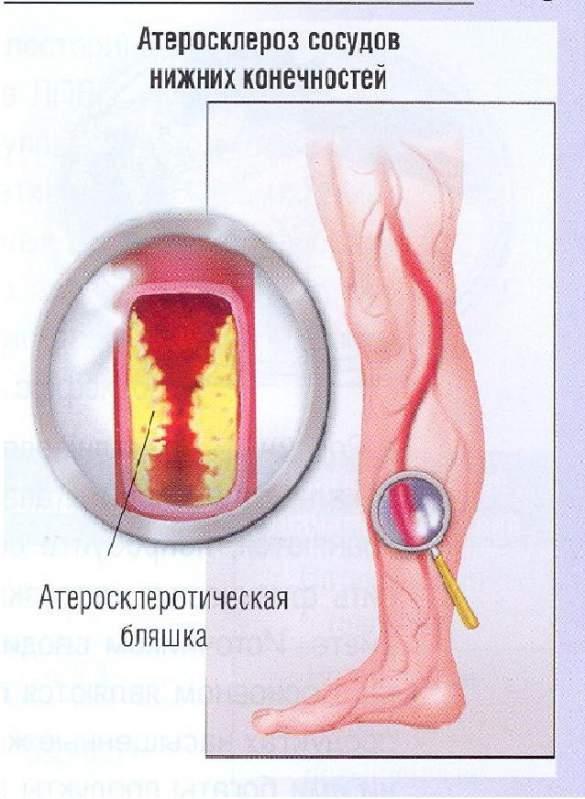 Что делать если лечение остеохондроза не помогает