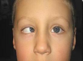 игривые, после окклюзии стали косить оба глаза оргии заставляет