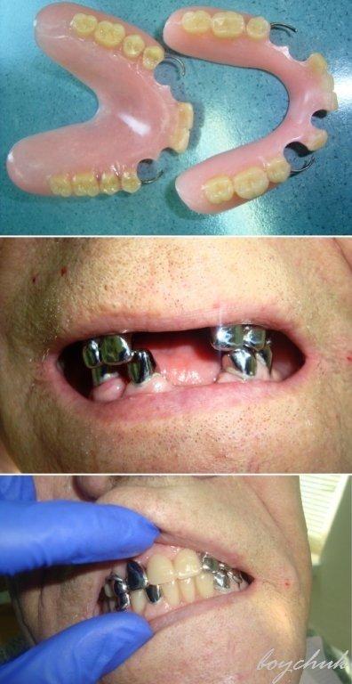 Гибкие протезы для зубов отзывы