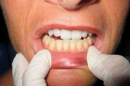 Заказать Чистый рот – здоровые сосуды