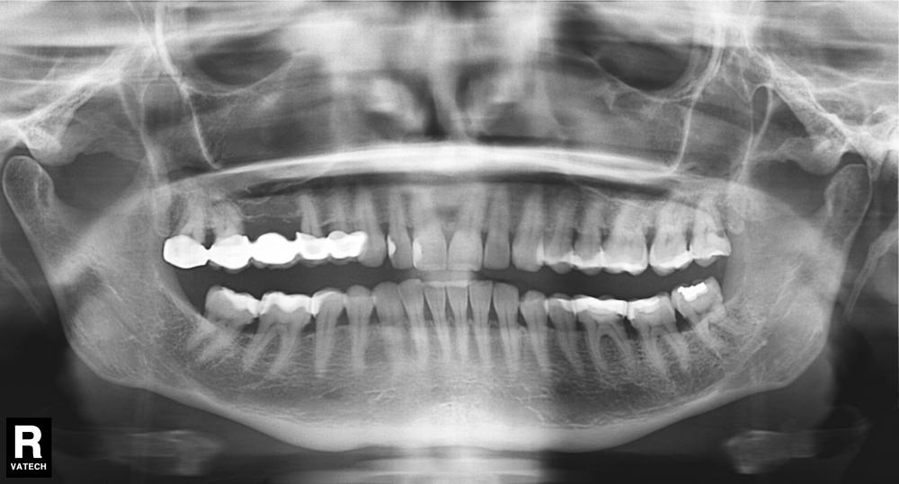 Панорамный снимок зубов электросталь