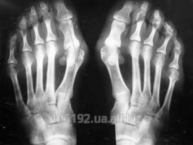 Hallux valgus (stone of the first fingers of feet)