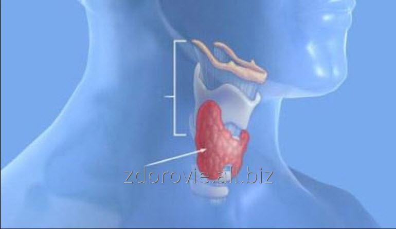 Заказать Лечение щитовидной железы