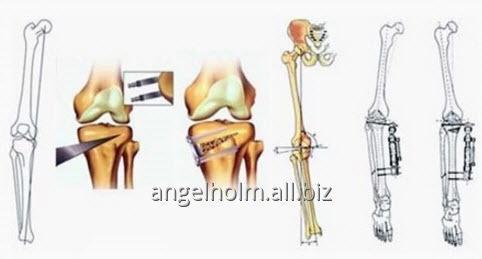 Заказать Лечение ортопедических заболеваний, поясничного отдела позвоночника