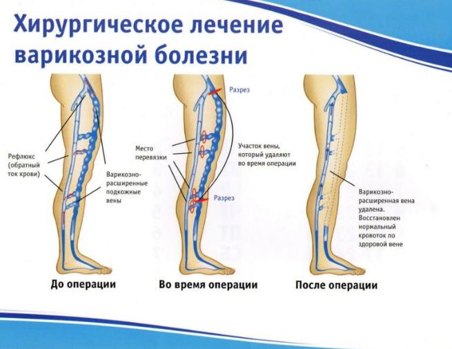 Диагностика и лечение варикозной болезни вен нижних конечностей ...