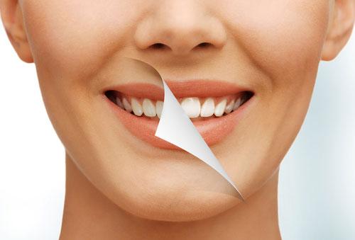 Заказать Профессиональная чистка зубов и отбеливание