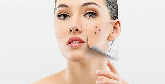 Заказать Радиоволновое удаление новообразований кожи/слизистых оболочек