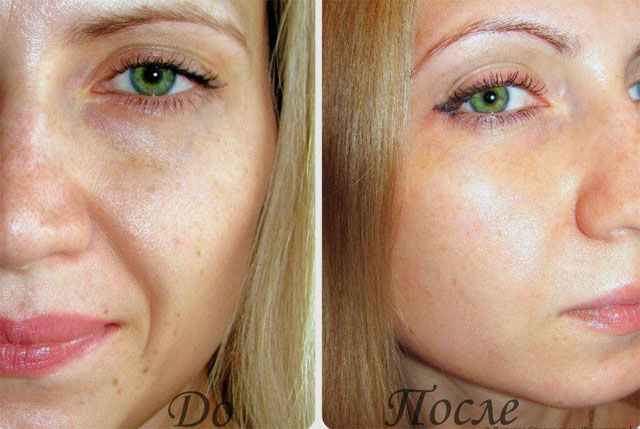 Order Ultrasonic tightening of facial skin