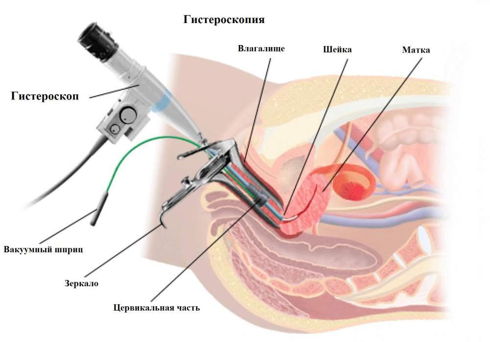 травмой сколько стоит процедура гистероскопии самых