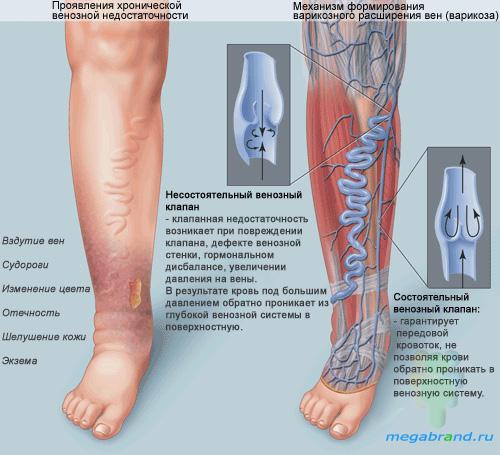 Склеротерапия вен нижних конечностей побочные эффекты