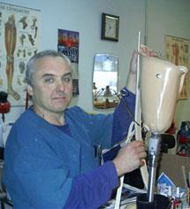 Изготовление протеза нижней конечности (ампутация