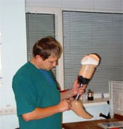 Prosthetics of the lower extremities (amputation