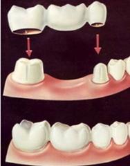 Изготовление протезов - зубы