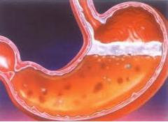 Treatment of a peptic ulcer of a stomach
