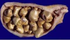 Treatment of cholelithiasis